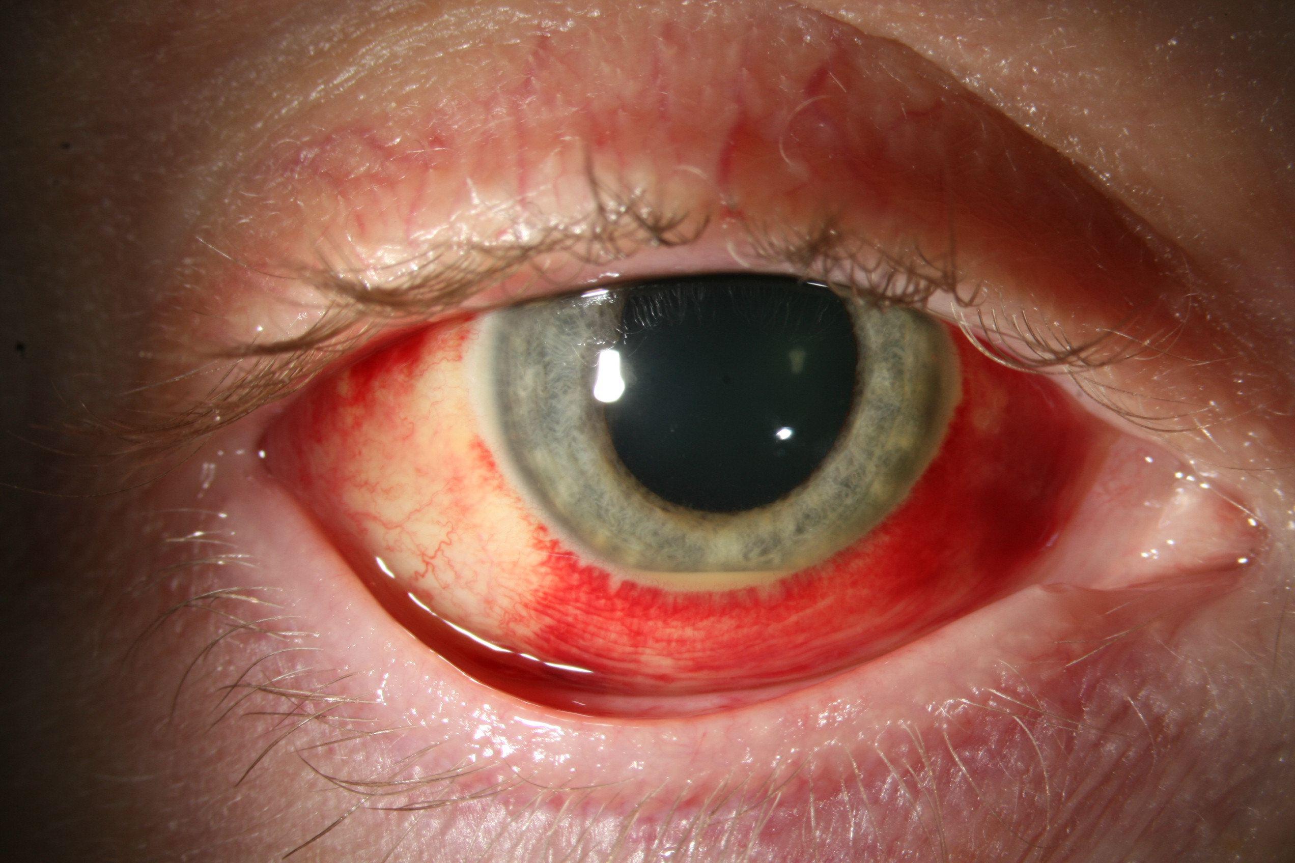 Pathologies oculaires - L'hémorragie sous conjonctivale..
