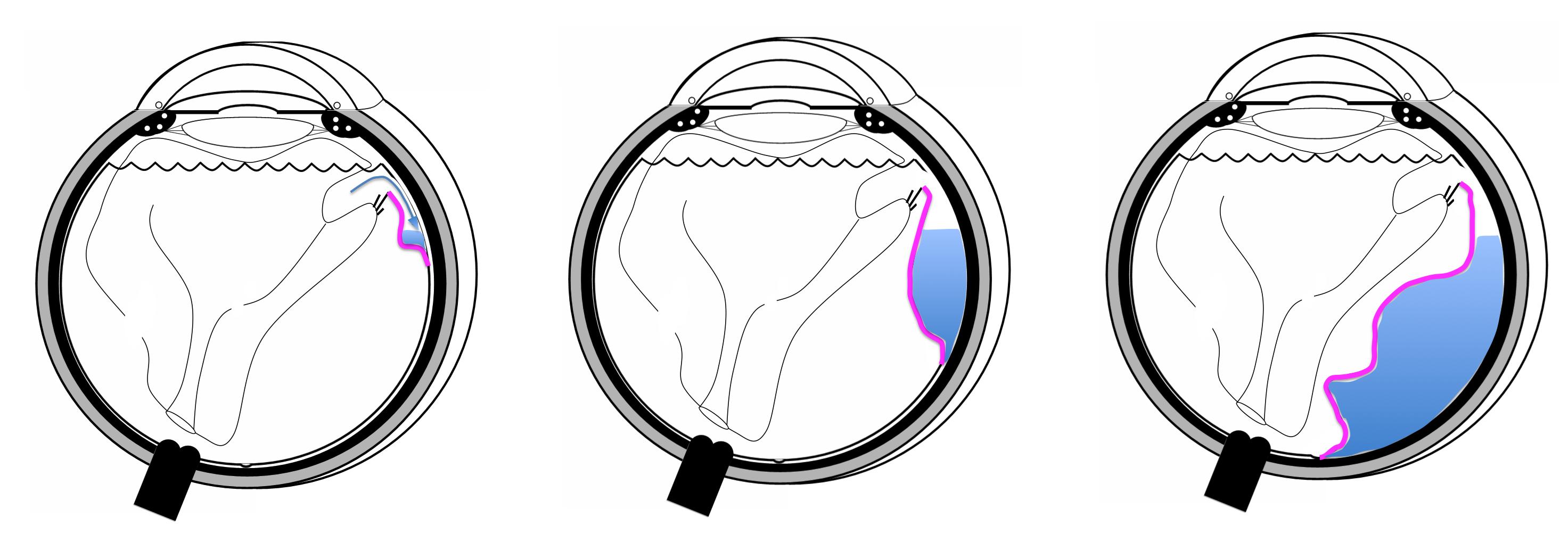 Pathologies oculaires - Les décollements de rétine - Pôle Vision Val ...
